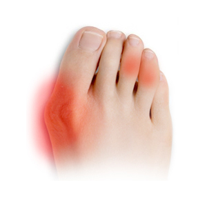 Deformace prstů