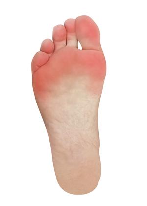 Bolest v přední části nohy